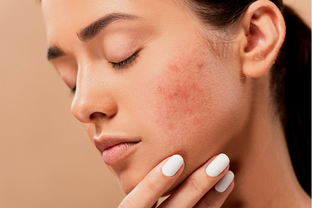 Le reazioni della pelle quando le temperature scendono: attenzione a rosacea e couperose